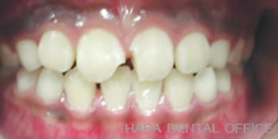 術前:転倒によって上顎左右中切歯を破折