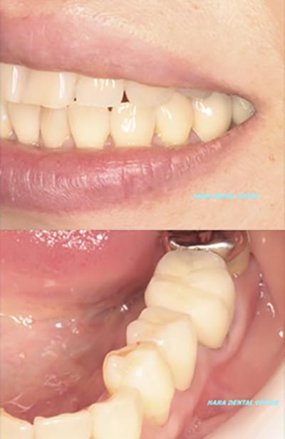 術後:ジルコボンド(セラミック系)によるクラウン(色は周囲の歯の色にあわせられます)