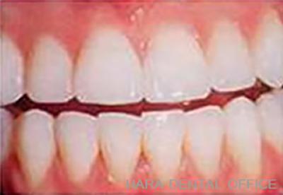 術後:ホワイトニングできれいな白い歯に!