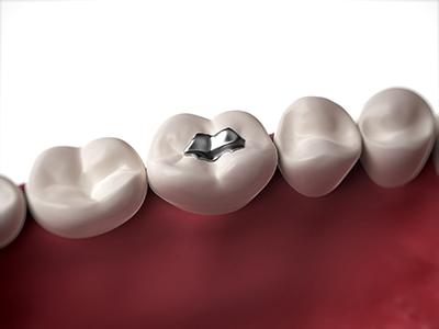歯科金属アレルギーとは歯の詰め物に使われた金属が原因で、全身に症状が出てしまう事をいいます。