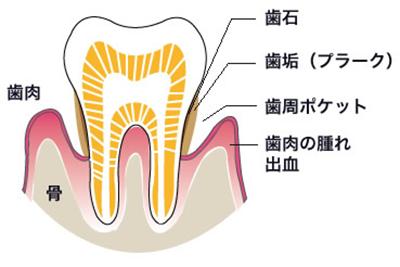 歯周病予防・歯周病チェック
