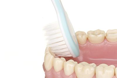 歯周病にならない歯のケア